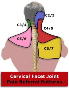neck facet referral.jpg
